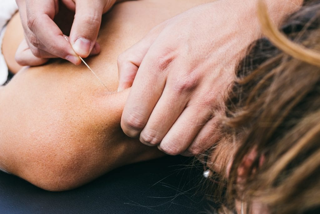 Woman having acupuncture performed on her shoulder