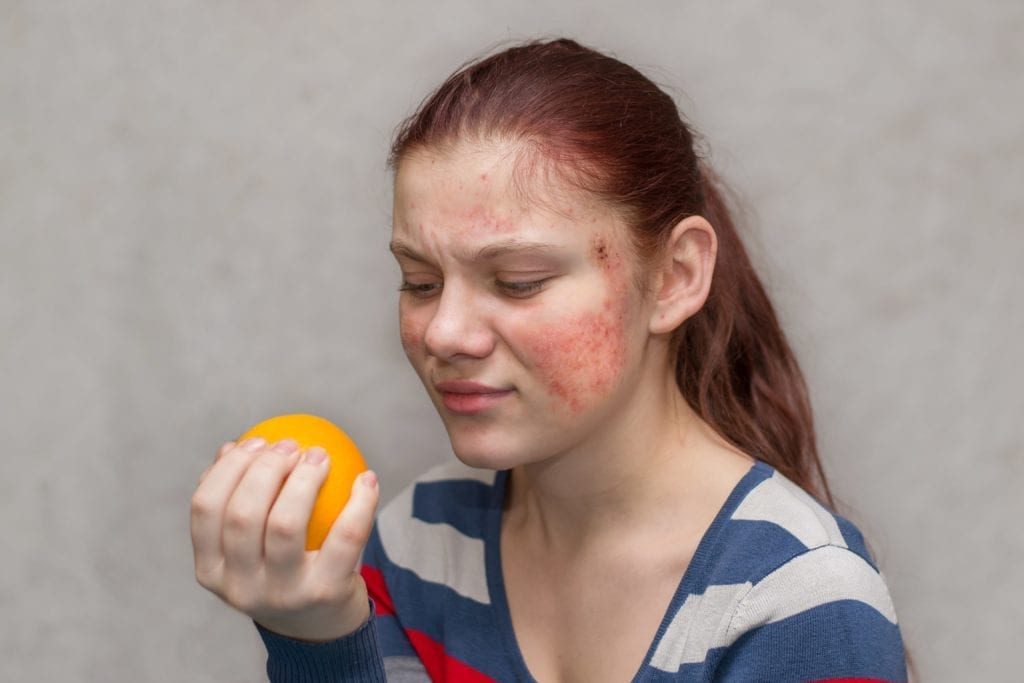 woman holding an orange and breaking out in a rash on her face
