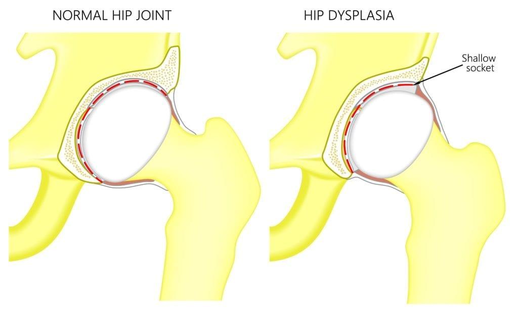 normal hip vs. hip dysplasia